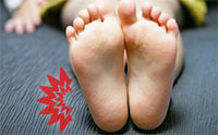 踵の痛み(踵骨棘)の原因