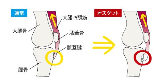 オスグットの痛みの原因