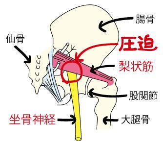 座骨神経痛の原因