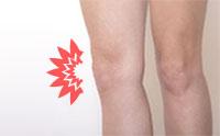 腸脛靭帯炎の原因